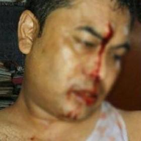 assam media person attack